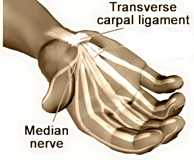 carpal tunnel syndrome tendons