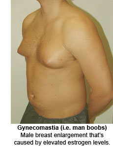 Gynecomastia – male breast enlargement caused by elevated estrogen levels.